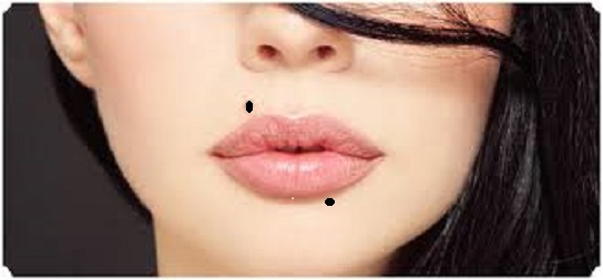 Moles on lips